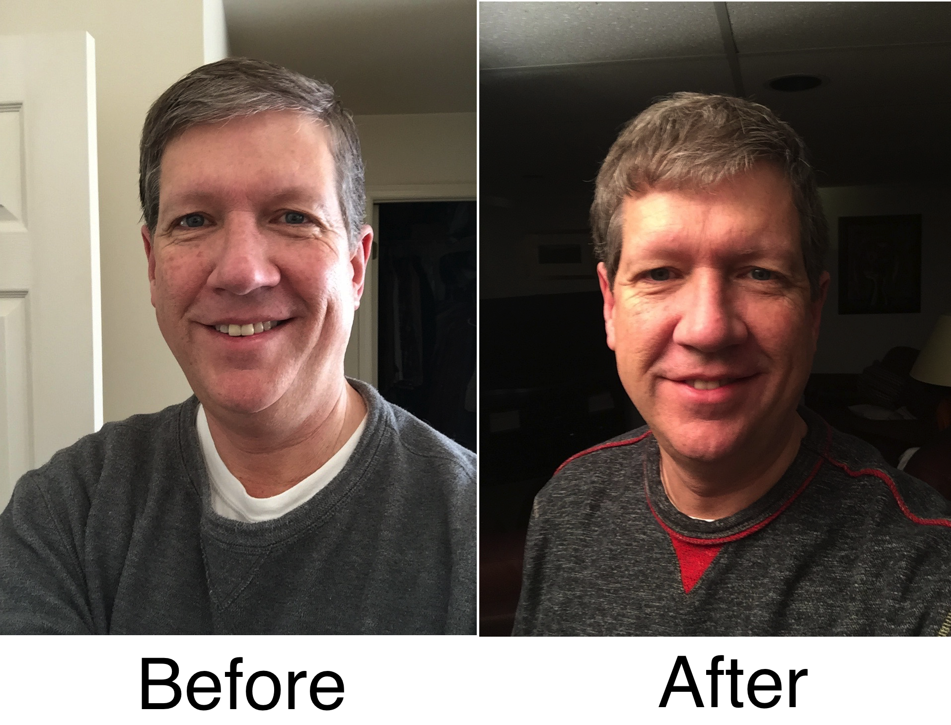Birthday 60 Before and After